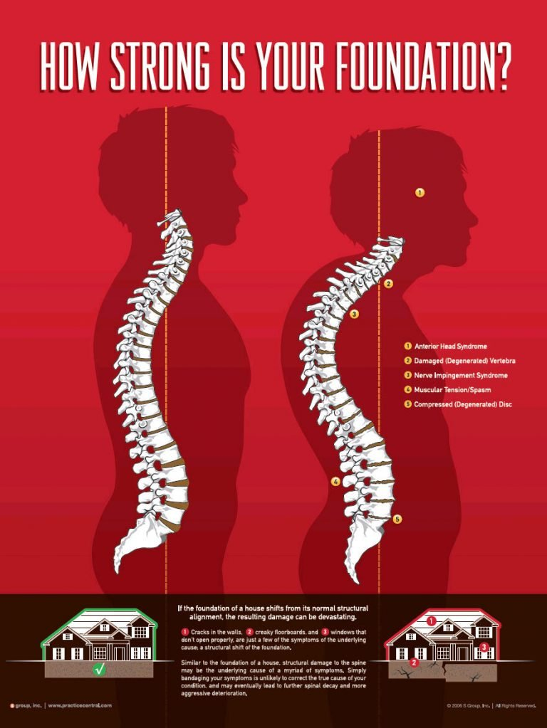 Spine Foundation