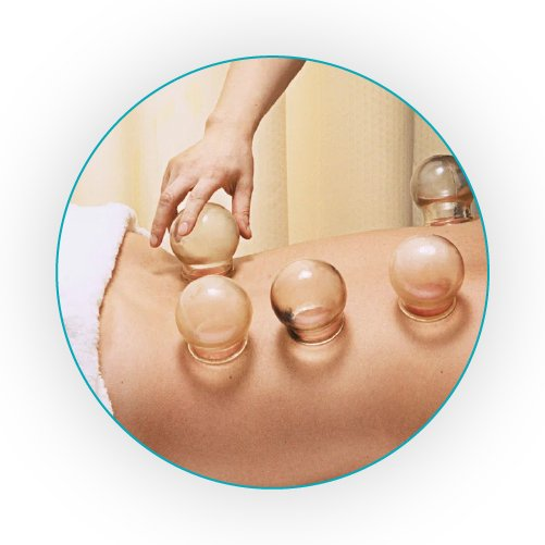 Cupping Therapy Oakleigh